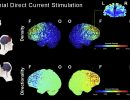 Enhancing tES automated models for aging brains